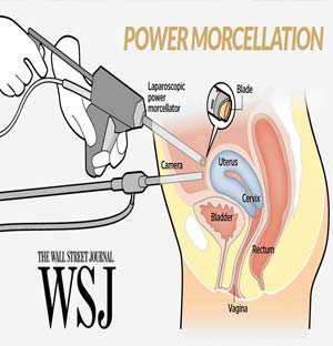 Power Morcellators – Hysterectomy Surgery